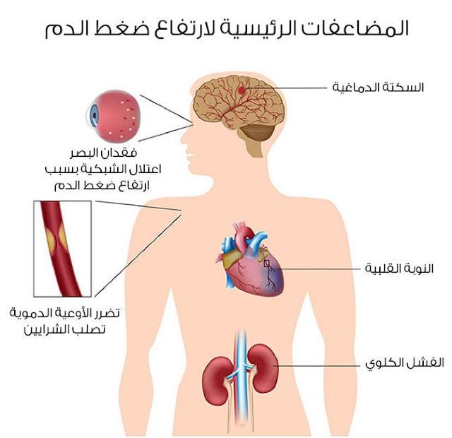 تشخيص ارتفاع ضغط الدم