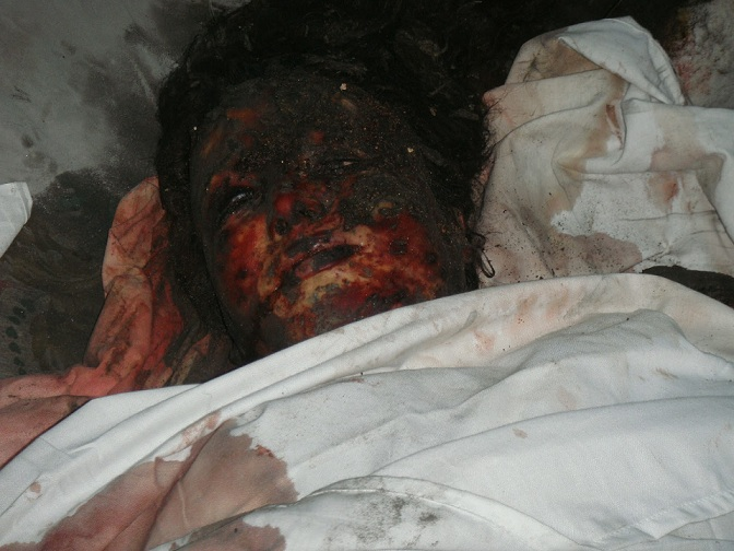 deceased, israel and gaza, save gaza, war, creepy, haunted, ghost, dead body, sad, pity