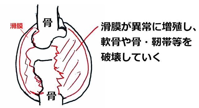関節リウマチとは 神戸やすらぎ訪問マッサージ