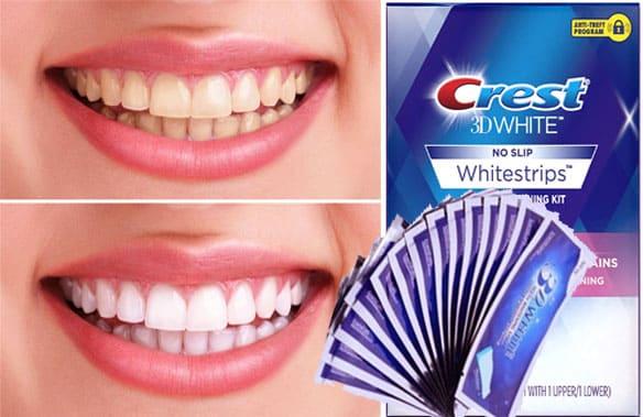 لصقات كرست لتبييض الاسنان طريقة الاستخدام والانواع والمميزات والعيوب
