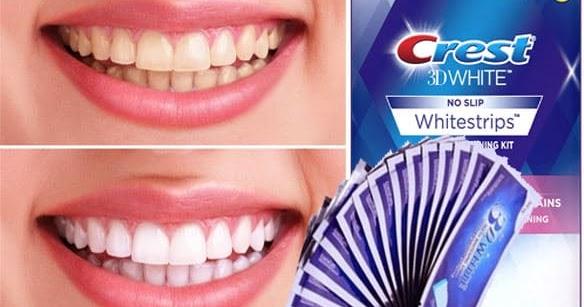 شاحنة نقل زهري ابدأ العد طريقة استخدام معجون كرست لتبييض الاسنان Comertinsaat Com