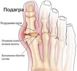 Санаторий отложения солей в суставах что такое доа коленного сустава