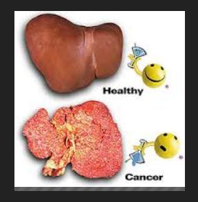 Waspadai Penyebab Penyakit Kanker Hati - Zakapedia