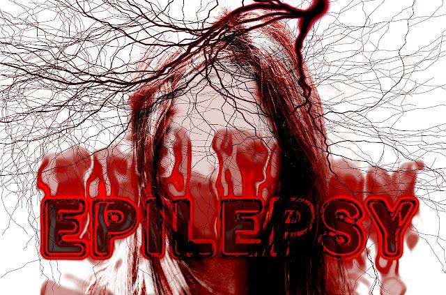 [Resim: epilepsi.jpg]