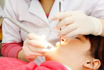 Băn khoăn nhổ răng cấm bị sâu có nên không?