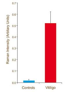 Concentración de H2O2 en pacientes sufriendo de vitíligo