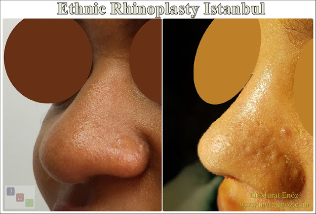 Ethnic Rhinoplasty Istanbul – Nose job in Istanbul – Nose surgery in Istanbul – Nose job in Turkey - Ethnic rhinoplasty Turkey - Ethnic rhinoplasty in Turkey - African American rhinoplasty - Ethnic expert nose job surgeon - Rhinoplasty surgeon in Istanbul - Black nose job - Rhinoplasty for ethnic nose - Rhinoplasty for African people - African American nose surgery – Rhinoplasty for African American Nose - Thick skin rhinoplasty - Rhinoplasty in istanbul