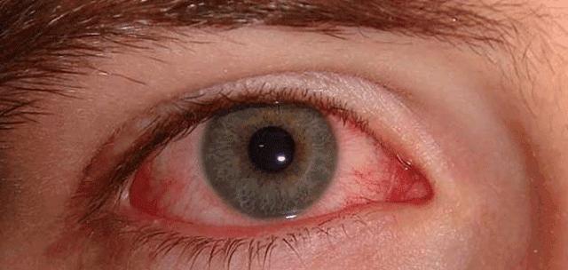 كيفية علاج حساسية العين واحمرارها