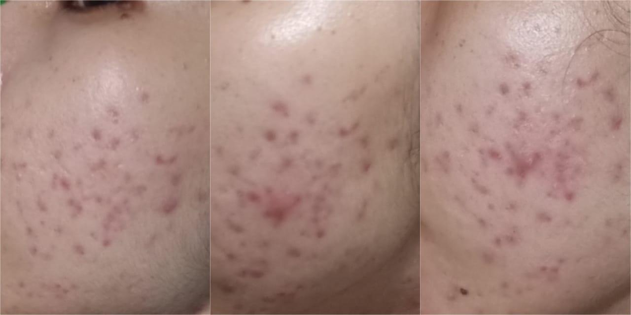 Dear Me Beauty Retinol + Blueberry Extract Face Serum