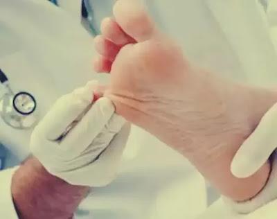 ciuperca piciorului unghie galbena forum tratamente naturiste formula as