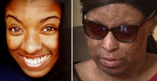 Salah Obat Yang Menghancurkan Hidup Wanita Ini Selamanya