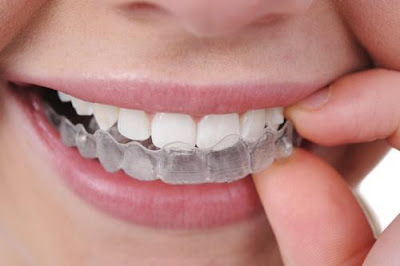 Bleaching dull teeth caused by food with bleaching trough