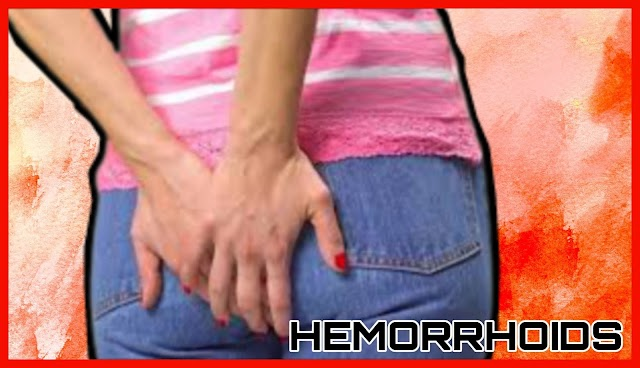 Most powerful home remedies for hemorrhoids