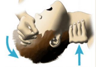 cara membuka jalan nafas