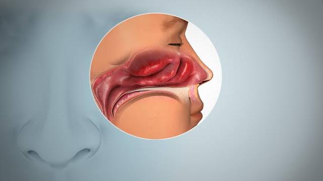 Cara Mengembalikan Penciuman Saat Flu