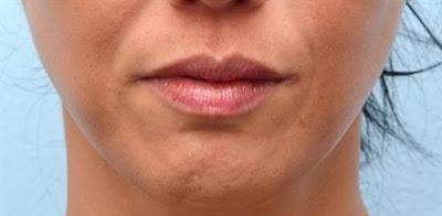 cobble chin prior to botox treatment