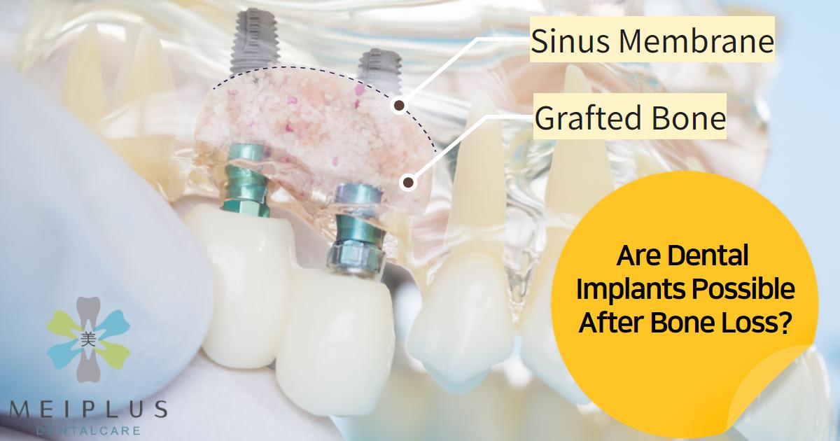 bone grafting dental implant cost