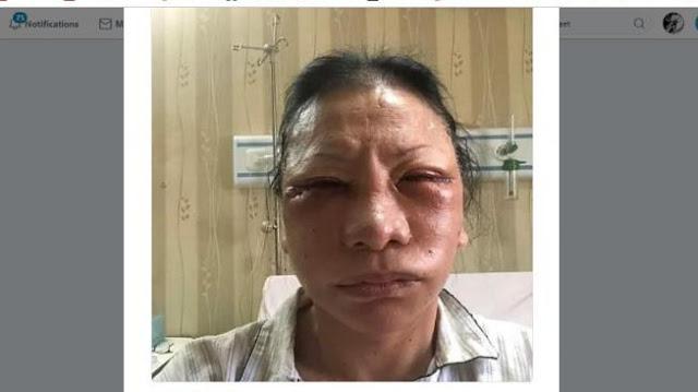 Kronologi Ratna Sarumpaet Dipukuli Di Bandung Hingga Babak Belur