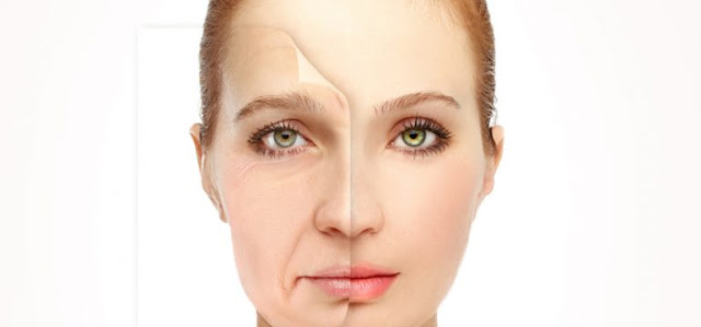 Neck Lift and Facelift