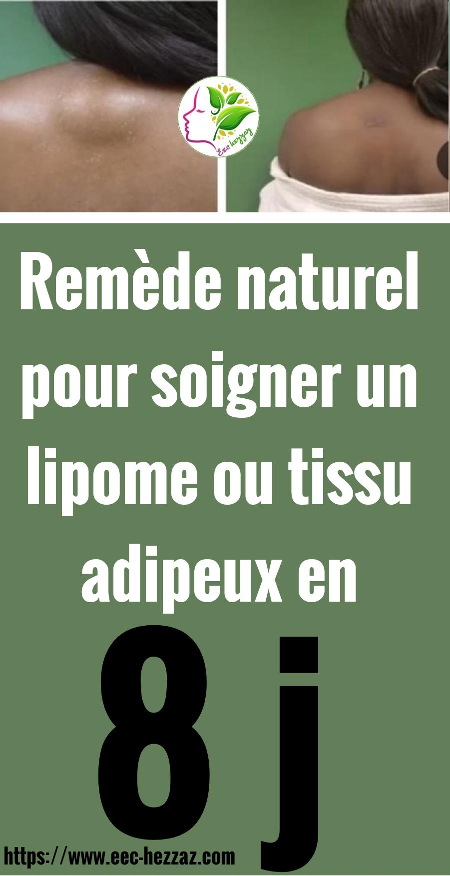 Remède naturel pour soigner un lipome ou tissu adipeux en 8 j