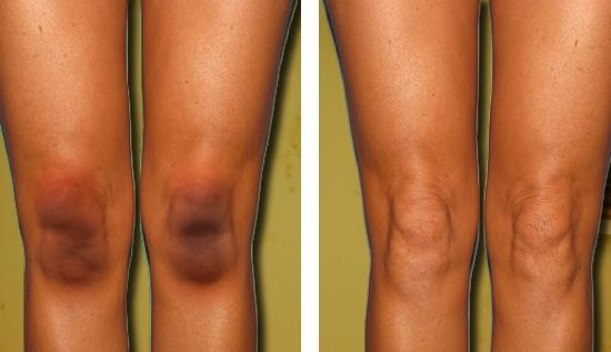 A Comprehensive Guide On How to Get Rid Of Dark Knees