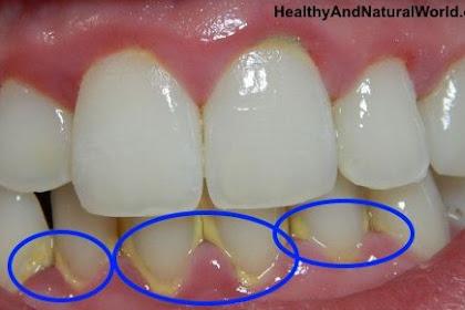 Lakukan Gaya Hidup Ini untuk Mencegah Karang Gigi