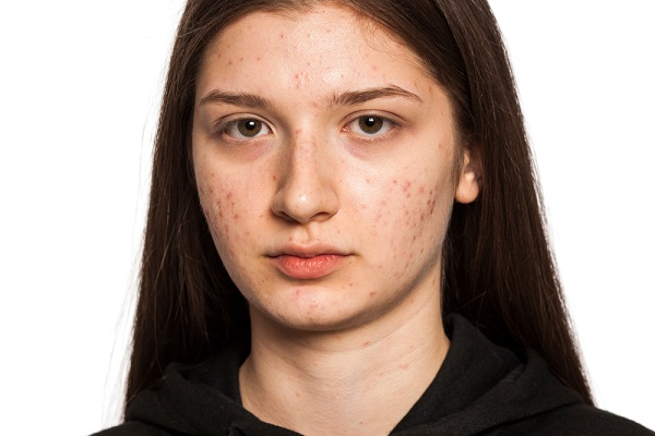 Share Review of Good and Bad Acne Facts