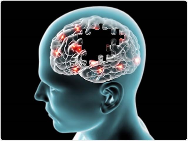 Le régime MIND vous aide sûrement à prévenir la maladie d'Alzheimer la maladie d'Alzheimer
