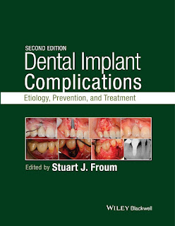 Dental Implant Complications 2nd Edition Etiology, Prevention, and Treatment