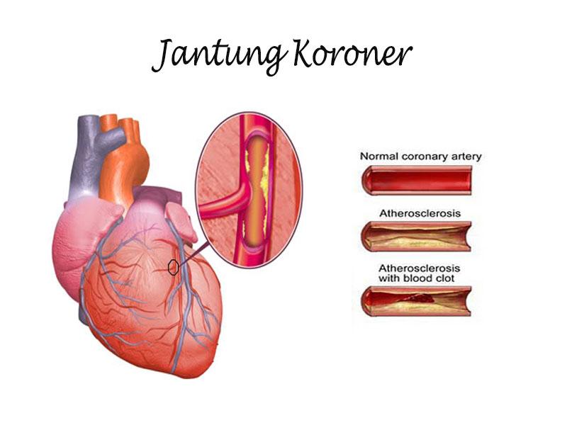 Arteri Koroner, Jantung Iskemik, Jantung Koroner, Penyakit Jantung, Jantung, Obat,