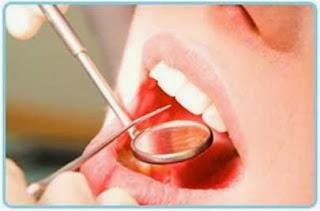 Cara Aalmi Menghilangkan dan Membersihkan Karang gigi