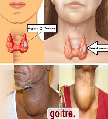 thyroid goiter.
