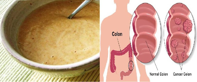 This Breakfast Prevents Colon Cancer and Melts Kilograms
