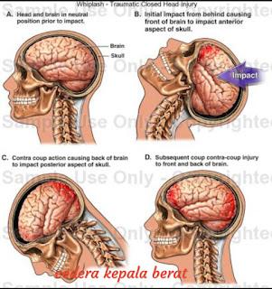 ASKEP Cedera Kepala Berat