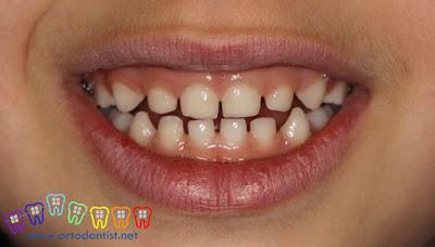 Diastema Tedavisi - Ortodontist - Dişler Arası Boşluk Tedavisi