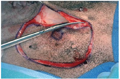 Teknik Operasi Tumor Mammae pada Hewan (Bedah Integumen)