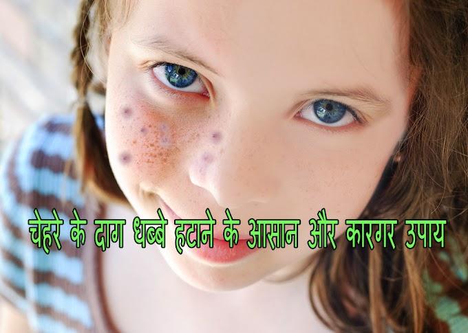चेहरे के दाग धब्बे हटाने के आसान और कारगर उपाय