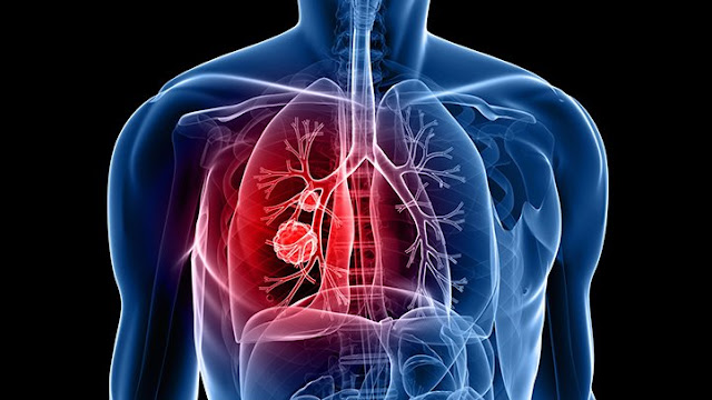 Lung Cancer - Classification, Stages, Symptoms, Cаuѕеѕ, Effесtѕ, Prеvеntіоn, Detection аnd Treatment