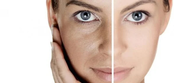 وصفة التخلص من بقع الوجه والكلف العميق و بقع الحبوب الداكنة.. وصفات لتبيض الوجه - وصفة لتبييض الوجه - تبيض الوجه في 5 دقائق - تبيض الوجه - تفتيح البشرة - وصفة لتبيض الوجه وتصفيته - روتين العناية بالبشرة - وصفات لتبيض الوجه كالثلج - وصفات لتسمين الوجه - العناية بالبشرة الدهنية - وصفات طبيعية للوجه - وصفة لازالة حب الشباب من اول مرة - وصفات تبييض الوجه - وصفات لحب الشباب - وصفة لتصفية الوجه - العناية بالبشرة الجافة - وصفة لتصفية الوجه - وصفة تبيض الوجه - وصفات للبشرة الجافة - وصفات للوجه والشعر - وصفات للوجه الجاف - وصفة الشوفان للوجه - ماسكات للوجه - تقشير الوجه - مقشر للوجه - غسول وجه - تفتيح البشرة - قناع للوجه - مرطب للوجه - غسول للوجه - افضل غسول للبشرة الدهنية - سيروم للوجه - كريم مرطب للوجه - كريم تفتيح الوجه سريع المفعول - فيتامين سي للوجه - غسول للبشرة المختلطة - تونر للبشرة الدهنية - ترطيب الوجه - غسول للبشرة الجافة - مساج للوجه - كولاجين للوجه - مقشر للبشرة الدهنية - فازلين للوجه - كريم نيفيا للوجه - الوفيرا للوجه - بيافين للوجه - العناية بالبشرة - علاج حبوب الوجه - علاج حب الشباب للبشرة الدهنية - علاج الحبوب في الوجه - البشرة المختلطة - ازالة الحبوب من الوجه - تبييض الوجه بسرعة فائقة