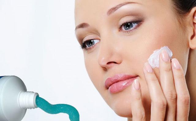Ayo siapa yang sering mengatasi jerawat pakai pasta gigi mulai sekarang hentikan