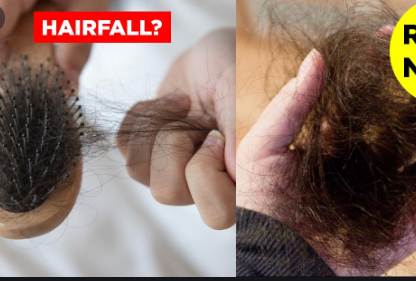 How to stop my hair from falling out and thinning