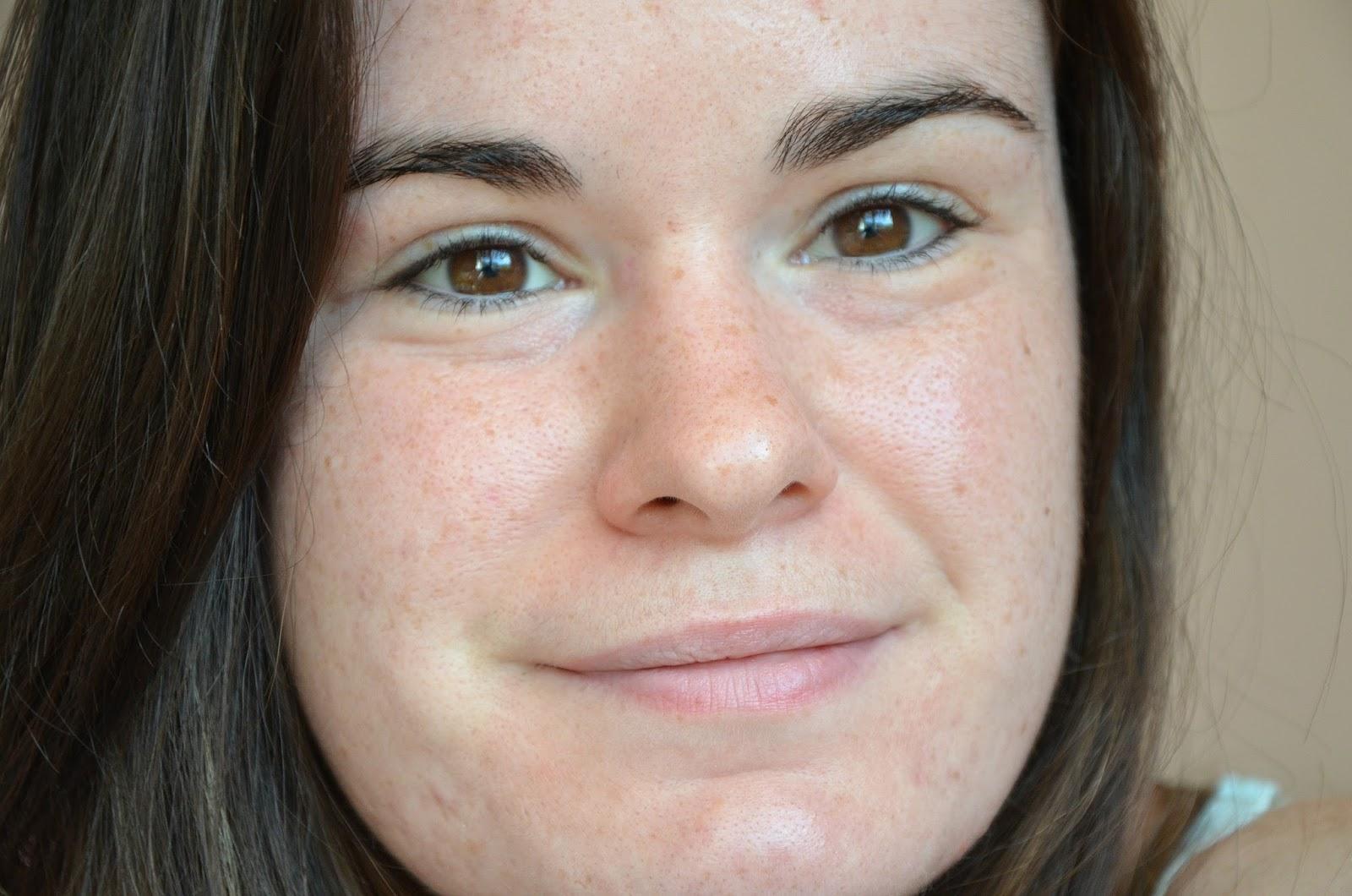bilan du cinquième mois de traitement contre l'acné visage