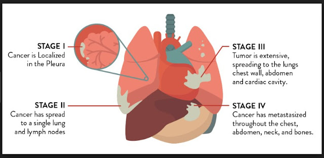 Mesothelioma Stages Number One Question You Must Ask for Pleural
