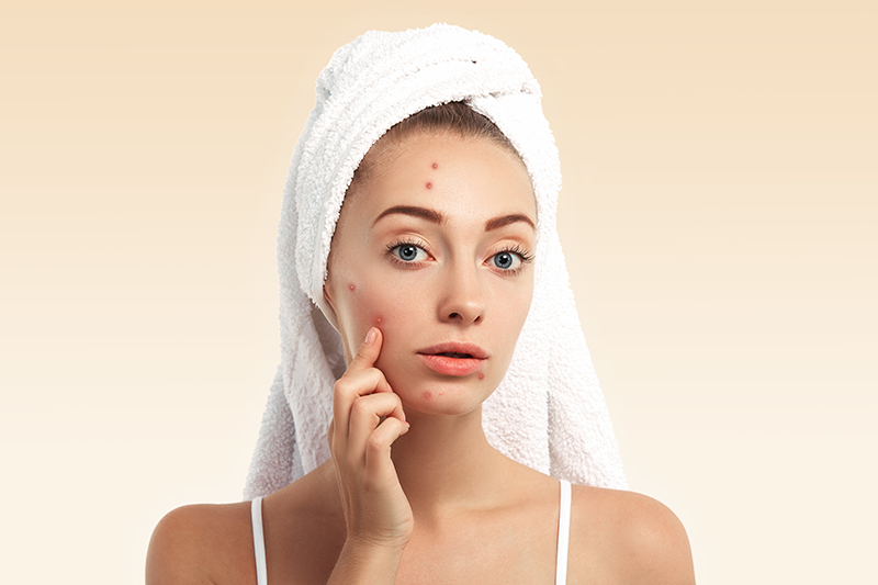 There Are 12 Food Items Included in the Anti Acne Die