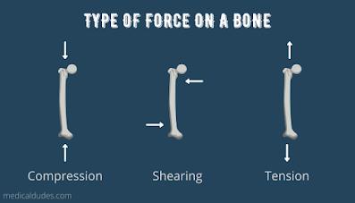 Bone Fracture In Hindi