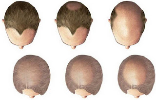 Erhair Hair Grow Shampoo dan Serum Solusi Rambut Rontok
