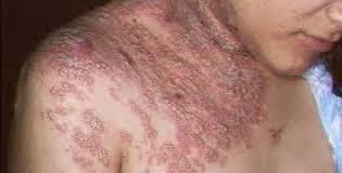 Obat Herpes yang Ampuh di Apotik