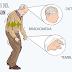 Estimulación cerebral profunda ayuda a los pacientes con Parkinson a recuperar el control