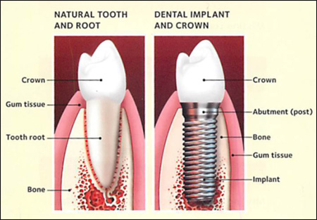 dental implant HCMC Vietnam