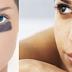 القضاء على الدوائر المظلمة حول العين Eliminate dark circles